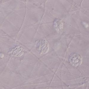 Acremonium Spores, Phialides, Hyphae